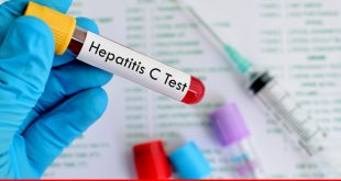 Hepatitis C: a major challenge in Pakistan